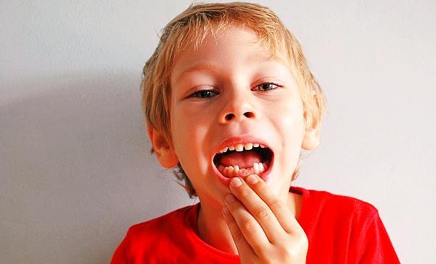 Rêver de perdre ses dents